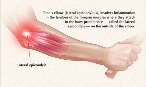 Suffering from Tennis Elbow? 5 Tips to Minimize Injury